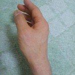 手の親指の包帯の巻き方